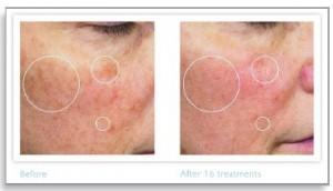 Philips RéAura разглаживает текстуру кожи - 86% ****