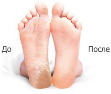 Результат использования SOSU носочки для педикюра