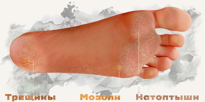 Проблемы с пятками решат Педикюрные носочки SOSU (СОСУ)