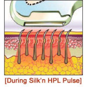 NEW Silk'n Pro IPL домашний фотоэпилятор