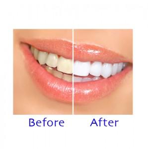 Аппарат для отбеливания зубов Rio Beauty Planet PROFESSIONAL TEETH WHITENING : Купить аппарат для отбеливания зубов