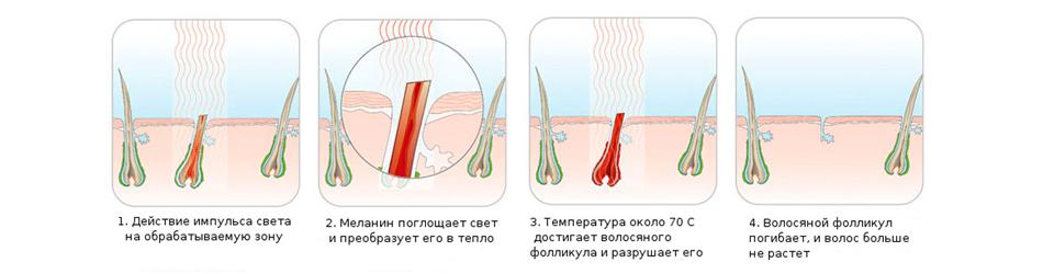 Что такое удаление волос с помощью технологии IPL или фотоэпиляции?