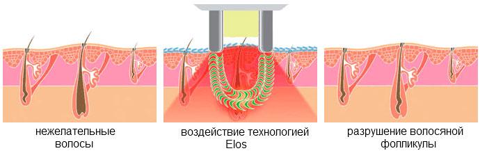 Новейшая запатентованная технология элос эпиляции: